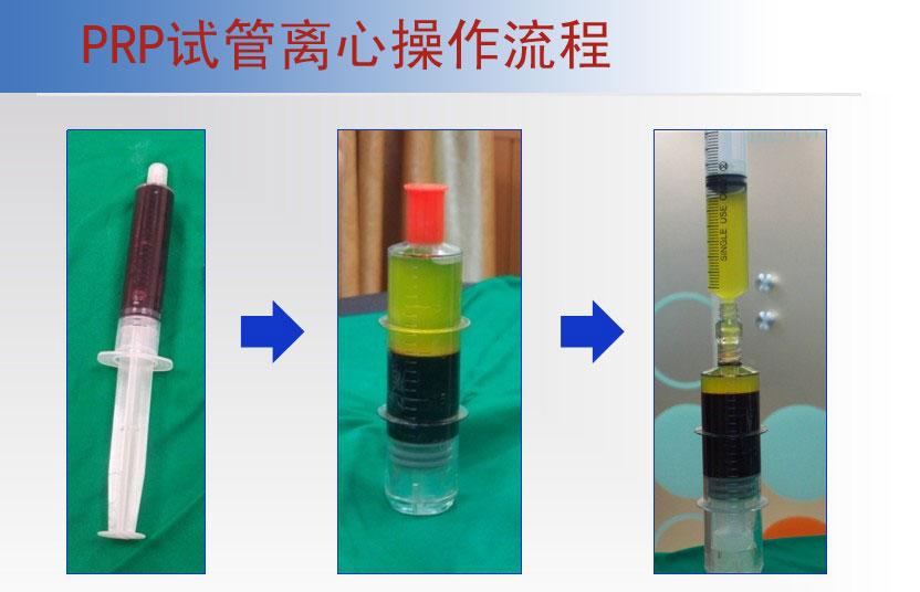 TD5P美容专用PRP注射移植离心机